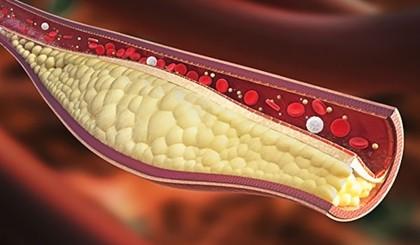 colesterol marit